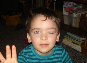 Swollen_eye2_1